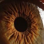 3 Penyakit Mata yang Berbahaya untuk Kesehatan Mata